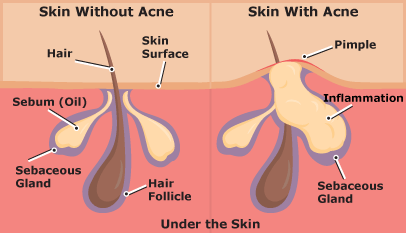 Understanding Acne: Difference between skin with and without acne