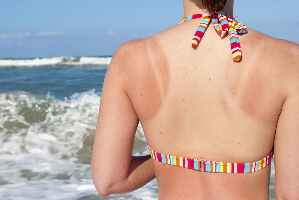 home-remedies-sunburn-main-052213